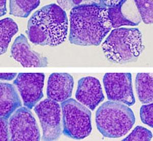 Haut : Cellules de leucémie myéloïde aiguë présentant des anomalies dans les conditions de culture standard. Bas : Cellules de leucémie myéloïde aiguë préservant leurs caractéristiques de cellules leucémiques à la suite d'une culture in vitro avec les deux molécules chimiques décrites dans l'étude citée. (Crédit photo : Institut de recherche en immunologie et en cancérologie)