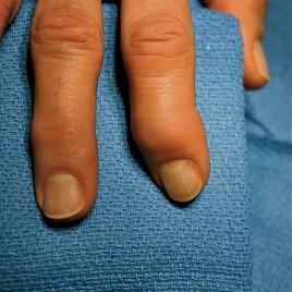 Enflure et déformation après la dernière jointure du doigt : un cas typique chez les personnes souffrant d'ostéoarthrite dans les mains. (Crédit: C. Noel Henley, MD via flickr)