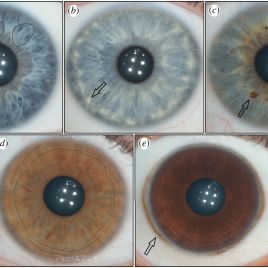 """The five features found most commonly in the human iris. "" Fuchs' crypts (a), wolfflin nodules (b), pigment spots (c), contraction furrows (d), and conjunctival melanosis (e). (Image credit: Edwards et al., The Royal Society Publishing)"