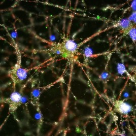Imaging studies showed C4 (in green) located at the synapses of primary human neurons. (Image credit: Image courtesy of Heather de Rivera [McCarroll lab])