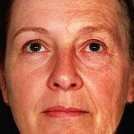 The impact of aging on human facial appearance as illustrated by the average face of 12 women aged 47 years (right facial side) and 12 women aged 70 years (left side). Aging effects facial skin such as wrinkling, uneven pigmentation, and facial structure such as lip size, nasolabial fold, with some people looking older, others younger for their age. (Image credit: Fan Liu)