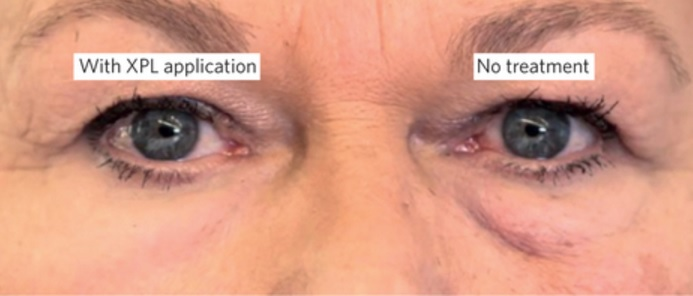 This image is an illustrative example of a 2-grade improvement, which was consistently observed following repeated split-face application of XPL.