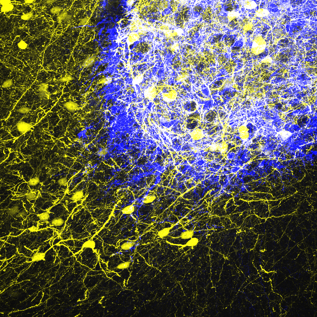 Embryonic neurons (yellow) transplanted into the adult mouse brain connect with host neurons (blue), rebuilding neural circuits previously lost with an injury. (Photo by Sofia Grade)