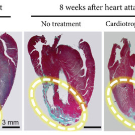The far right image shows how a cardiotrophin treatment repaired heart muscle after a heart attack in a rat model. The blue areas are scar tissue and the red sections are healthy heart muscle (Cell Research/Medley et al., 2017)