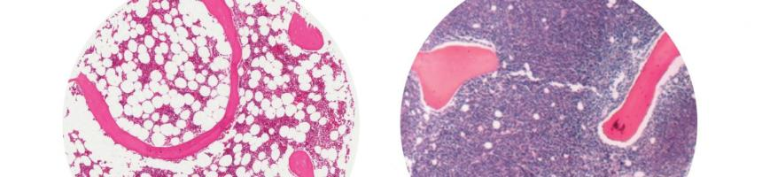 These are fat cells (white circles) in healthy human bone marrow, left, compared to bone marrow in a patient with leukemia, right. (Image courtesy McMaster University)